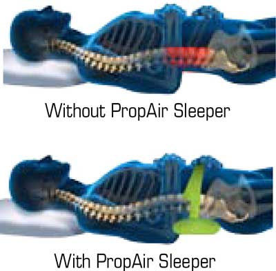 Advantages of Propair used on back sleeper